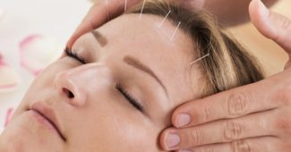 acupuncture-visage-femme